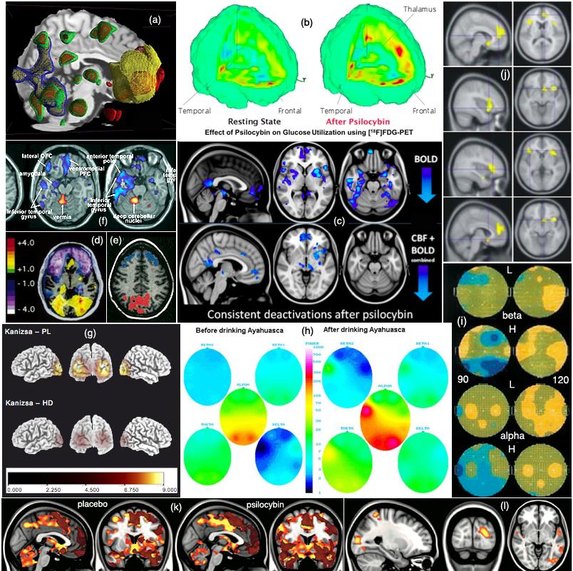 Psilocybin neurogenesis study